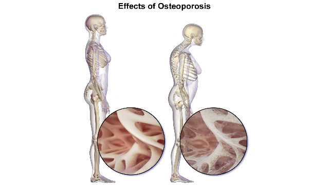 Term paper about osteoporosis