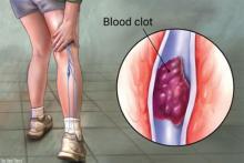 vein thrombus