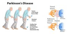 PARKINSON'S DISEASE CASE STUDY